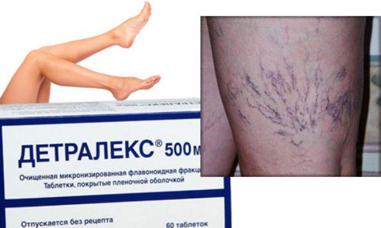 Детралекс: инструкция по применению при варикозе