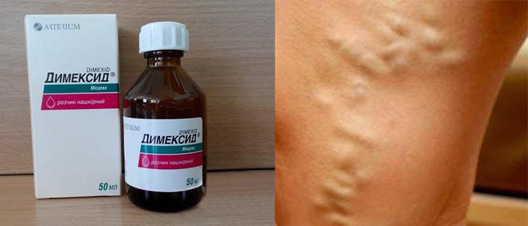 Димексид при варикозе: состав, применение, противопоказания