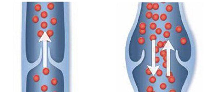 Клапанная венозная недостаточность: лечение, причины