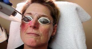 Схема лечения розовых угрей
