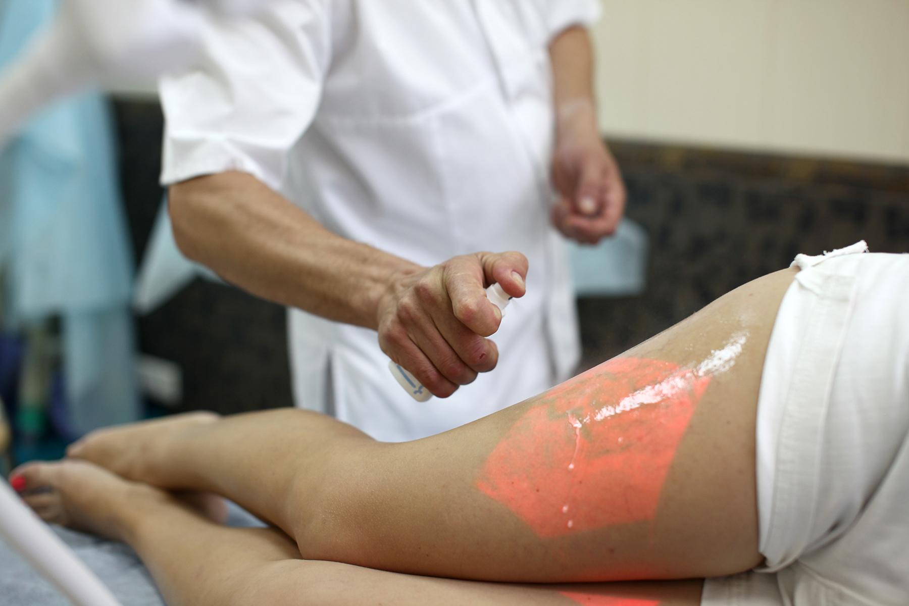 Лечение варикоза вен без операции лазером Москва МО