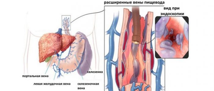 Варикозное расширение вен пищевода с кровотечением