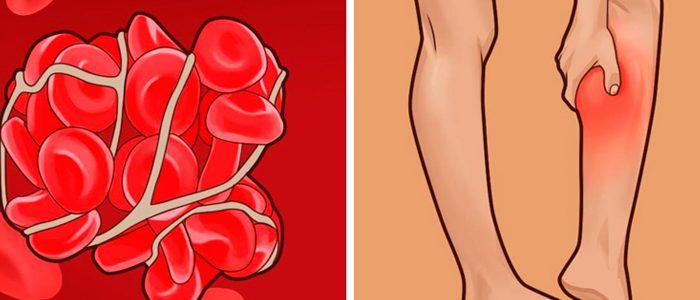 Тромбоз артерий нижних конечностей симптомы