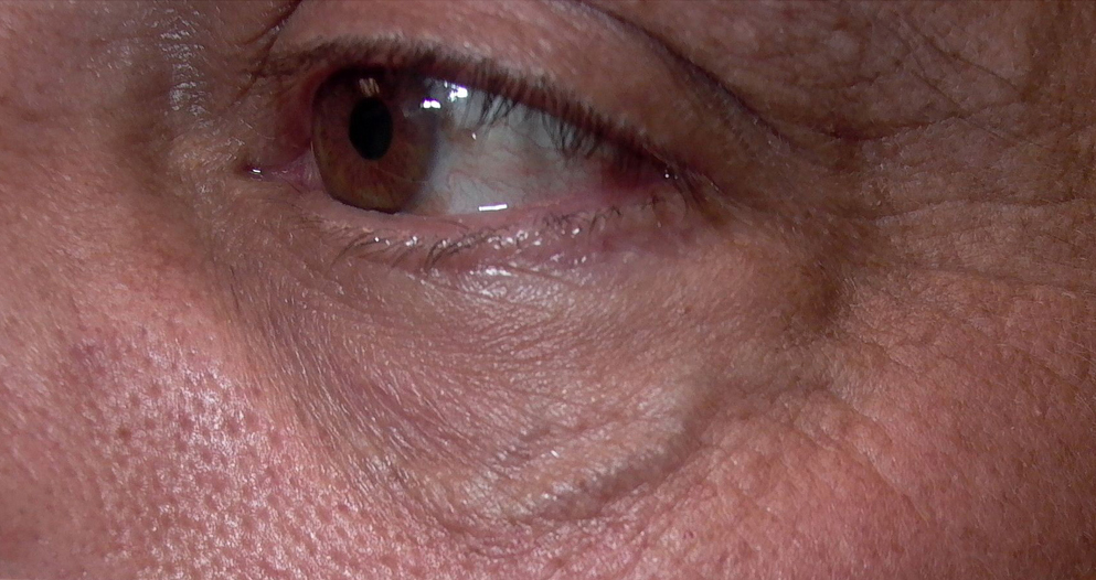 Варикоз глаз если появились вены под глазами