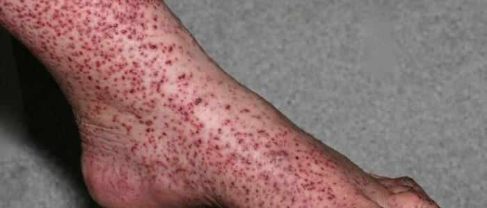 vaskulit na nogah - Kako liječiti vaskulitis na nogama donjih ekstremiteta