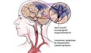 Тромболитическая терапия показана при